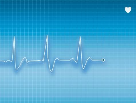 Síndrome del QT: electrocardiograma