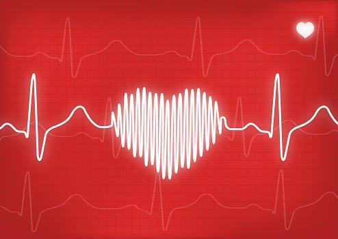 Cuáles son los síntomas de un infarto y su tratamiento