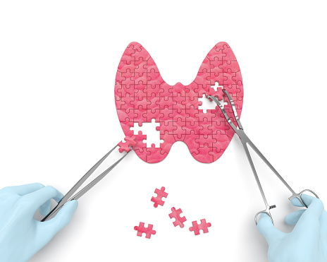 Síntmoas del hipotiroidismo e hipertiroidismo