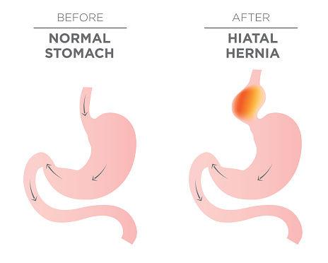 hernia de hiato interior-682556194
