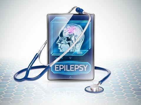 ataque epiléptico