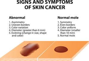 signos de cáncer de piel